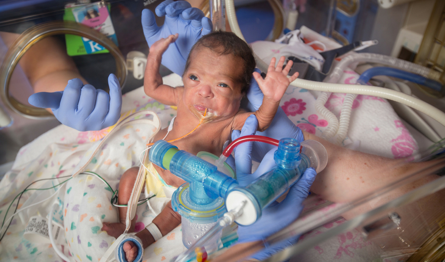World Prematurity Day: A Look at Community's Impact on Premature Births